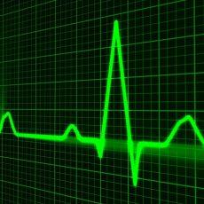 Poor sleep can 'increase risk of heart failure, coronary artery disease and strokes'
